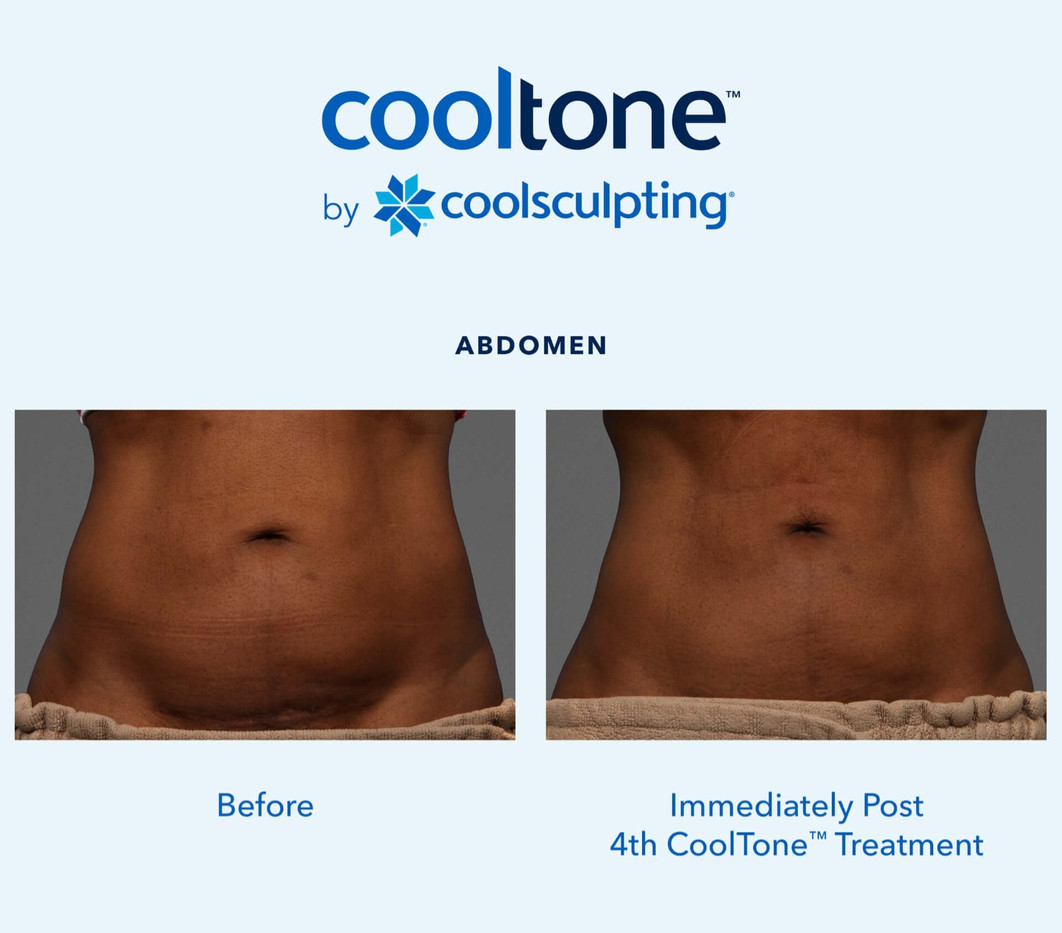 CoolTone-Female-Abdomen-before and after