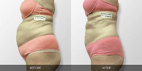 ilipo plastic surgery alternative