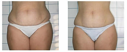 before and after cellulite treatment las vegas