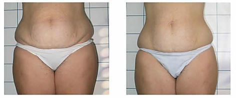before and after cellulite treatment las vegas Summerlin