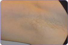 Laser Hair Removal armpit_1_before.jpg