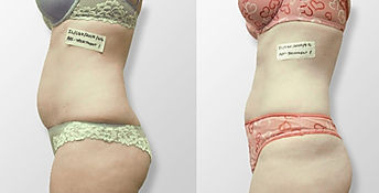 before and after ilipo liposuction laser las vegas 8 treatments.jp