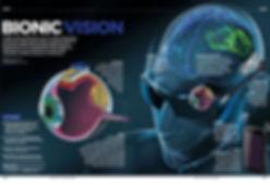 Bionic Eye Final_17May2017.jpg