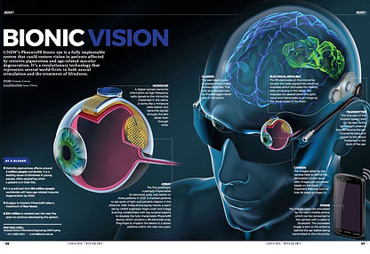 Bionic Eye Final_17May2017.jpg