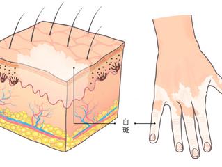 為什麼會得白斑/白癜風(Vitiligo)?