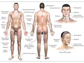 白斑的誘發因子|摩擦 Friction