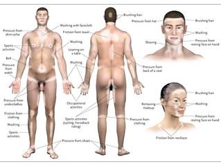 白斑的誘發因子 摩擦 Friction