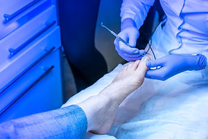 Treatment of nails. Ingrown nail. pedecu