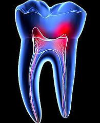 endodontia-santarem.jpg