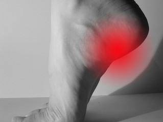 Don't Let Plantar Fasciitis (heel pain) Slow You Down