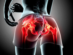 Strengthening the Hip - Why Is It So Important?