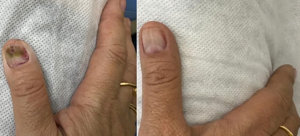 Micose de Unha na Mão
