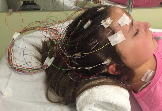 EEG of the brain