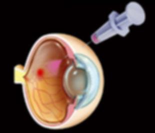 Διαβητικό Οίδημα Ωχράς Κηλίδας (1).jpg