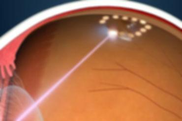 retinal tears laser.jpg