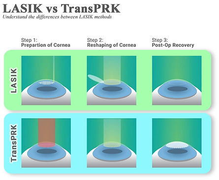 Διαφορές Trans PRK - Femto Lasik (2).jpg
