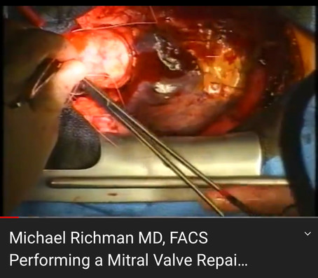 Dr. Richman Performing Open Heart Surgery (Mitral Valve Repair)