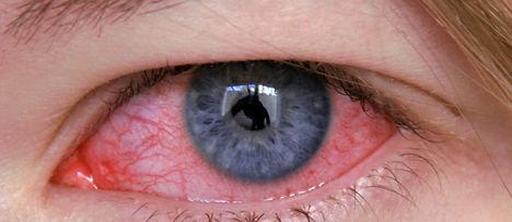 Conjuntivite, vermelhidão nos olhos, irritação ocular
