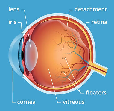 floaters and retinal detachment illustration