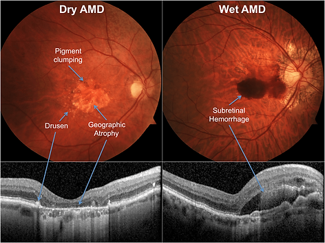 OCT scans for macular degeneration AMD