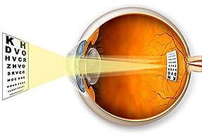 Cataract--implant%20%26%20chart_edited.j