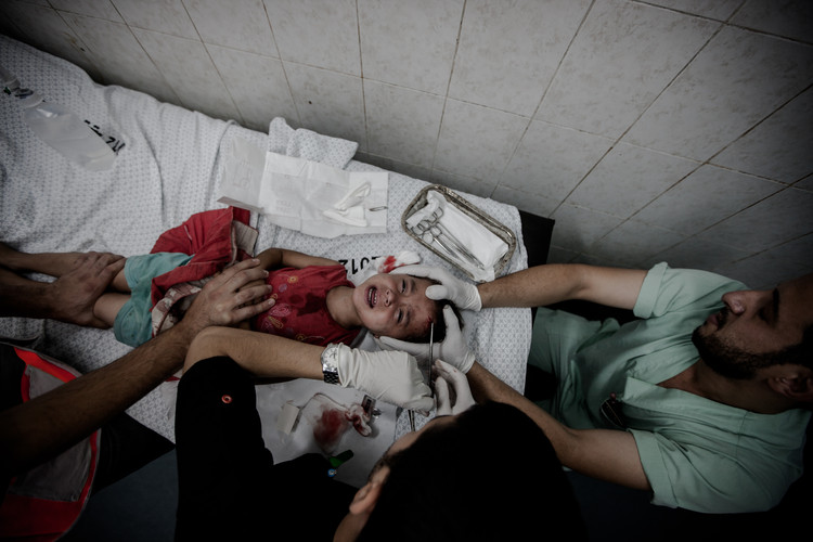 A young girl injured during an Israeli airstrike is being treated in Dar Al-Shifa Hospital, the largest medical complex and central hospital in the Gaza Strip, located in the neighbourhood of North Rimal in Gaza City (Gaza, 2014).