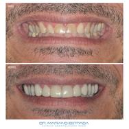 Diseño de Sonrisa - Dr. Mariano Estrada
