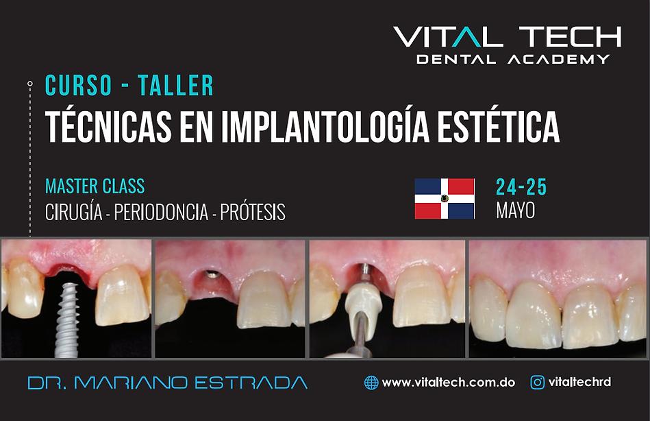 Tecnicas implantologia estetica.png