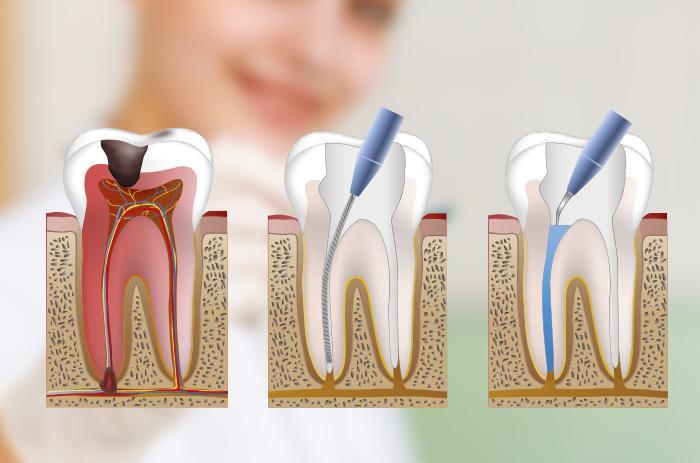 Resultado de imagen de endodoncia