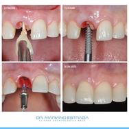 Dr. Mariano Estrada - Implantes Dentales