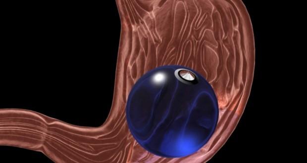 presença de um tipo de balão dentro do estomago