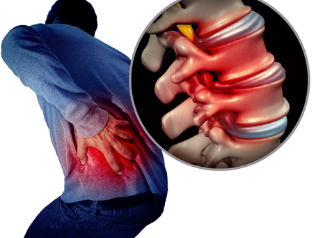 How To Quickly Eliminate Back Pain Without Being Held Hostage By A Herniated Disc