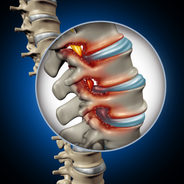 Spine - Disc Anatomy 1.png