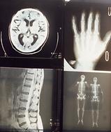 humanX-rays.png
