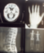 X-ray, skeleton, bones, the human body