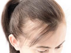 薄毛対策には頭皮マッサージ|薄毛改善|廿日市美容院