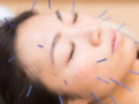 女性の顔への美容鍼の施術