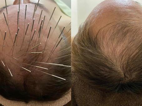 薄毛治療について