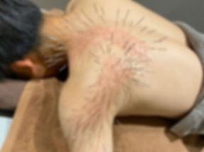 ルート治療を受ける男性