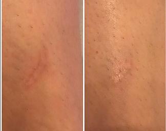E's scar.jpg