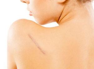 Correccion de cicatrices Dr Alexis.jpg
