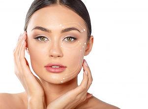 Hilos tensores faciales Dr Alexis Romero