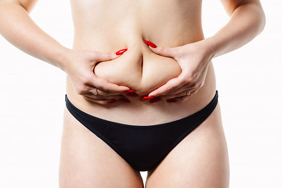 Skin Removal after Bariatric Surgery.jpg