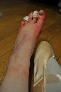 Pain of Pointe