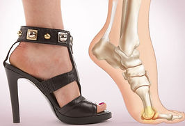 webmd_rf_photo_of_foot_pain_from_heels.j