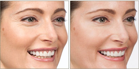 woman botox before and after