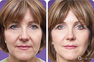 female before and after facial fillers