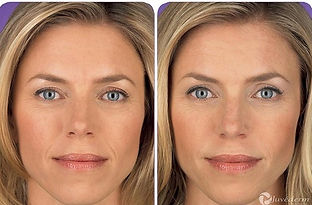 woman before and after facial fillers