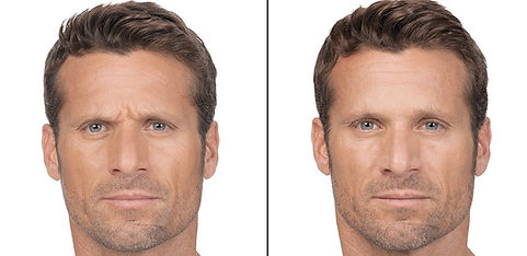 man botox before and after