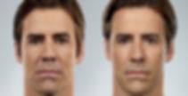 male before and after facial fillers